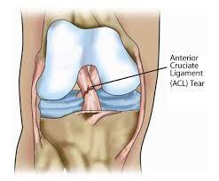 Anterior Cruciate Ligament [ ACL ] tear