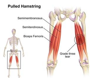 Hamstring Sprain